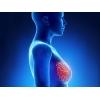 Рак груди.  Хирургические операции в Китае.